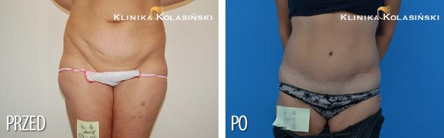 abdominoplastyka - plastyka brzucha