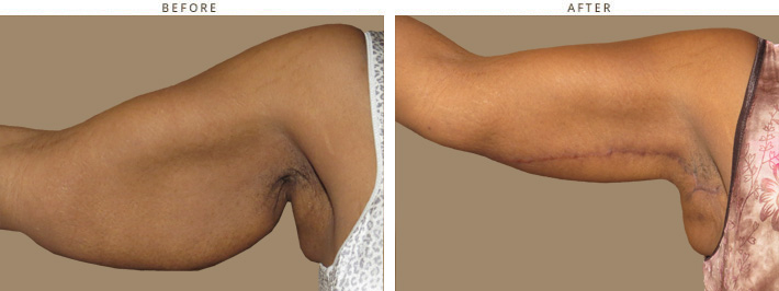 Plastyka ramion, lifting ramion, modelowanie ramion