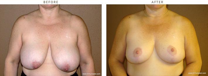 Redukcja piersi, zmniejszenie piersi