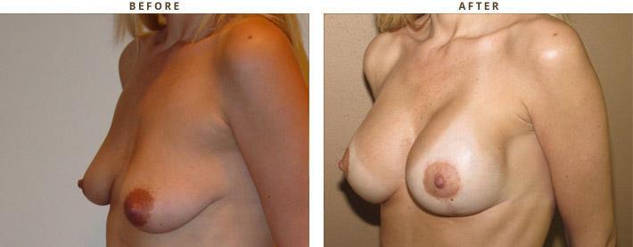 Lifting piersi, podniesienie piersi