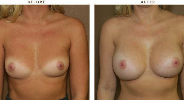 Powiększanie piersi, powiększanie biustu, augmentacja piersi, implanty piersi
