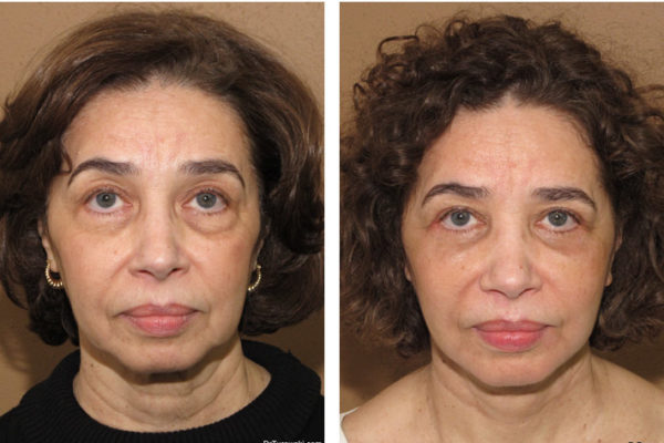 Lifting twarzy, facelift