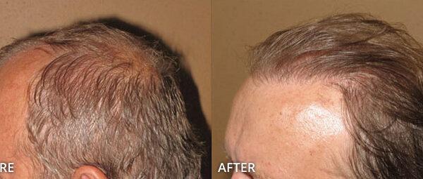 Przeszczep włosów, transplantacja włosów