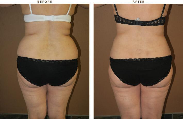 Liposukcja, odsysanie tłuszczu