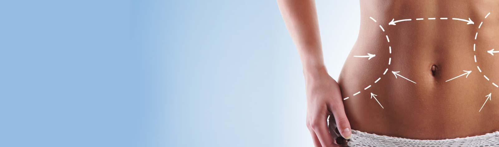 5 sposobów na osiągnięcie naturalnych efektów liposukcji