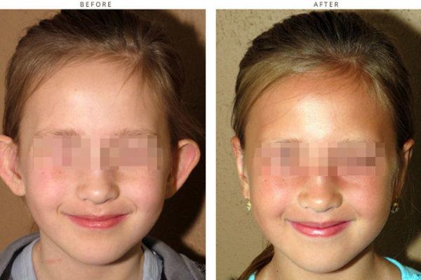 Plastyka uszu, korekta uszu, korekcja uszu, otoplastyka