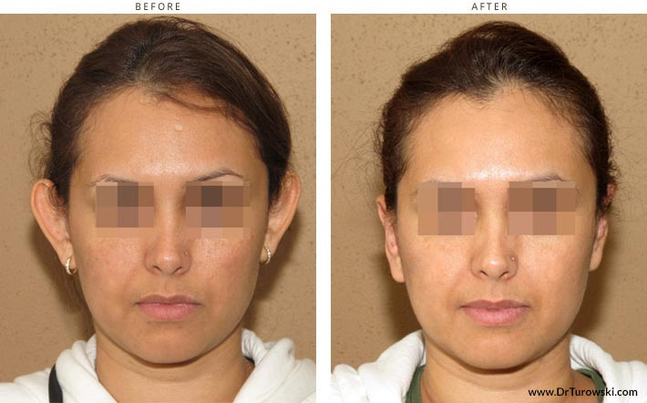 plastyka uszu - korekta uszu - otoplastyka