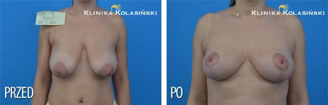 lifting piersi - podniesienie piersi