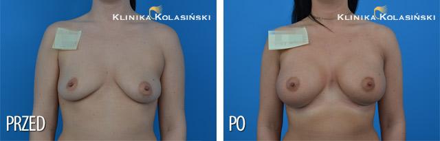 powiększanie piersi - powiększanie biustu