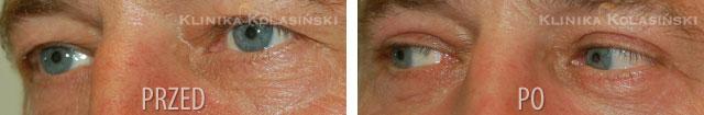 plastyka powiek - korekta powiek - blepharoplastyka