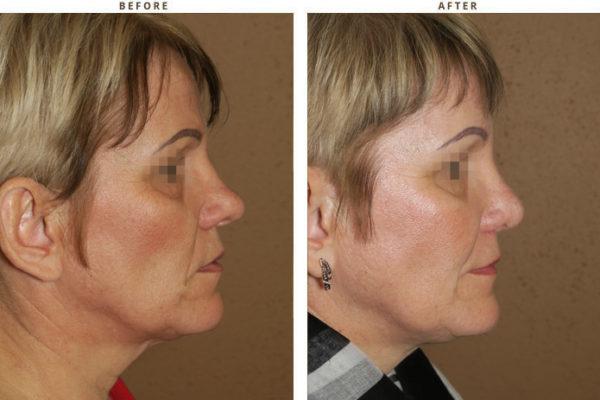 Plastyka nosa, korekta nosa, korekcja nosa, rhinoplastyka