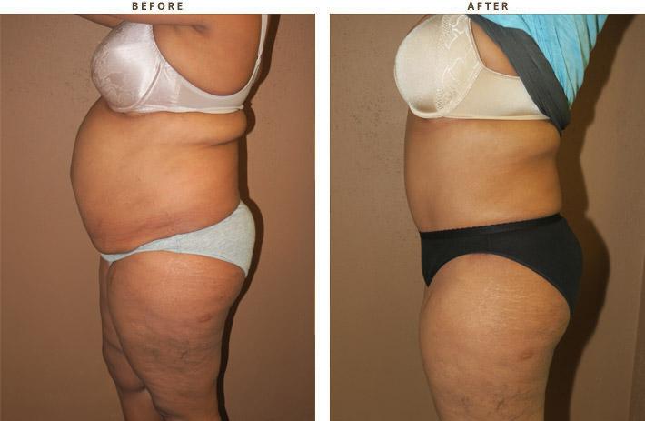 Abdominoplastyka, plastyka brzucha