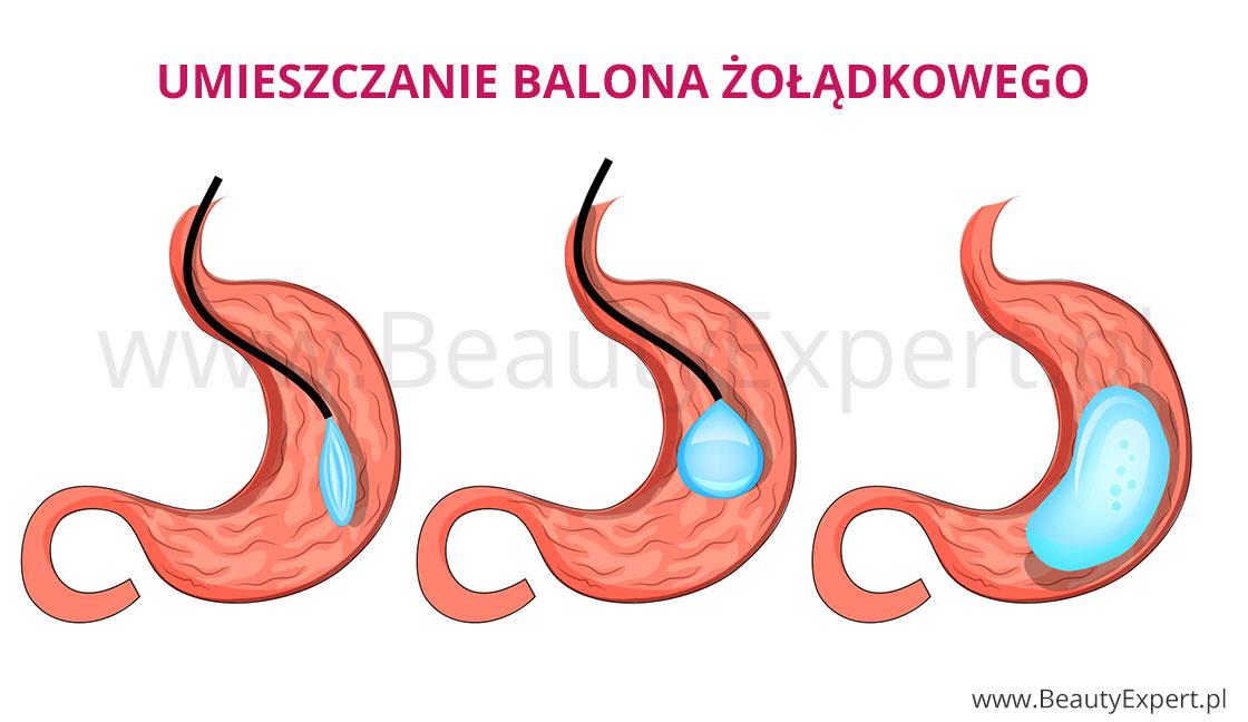 Umieszczanie balona żołądkowego