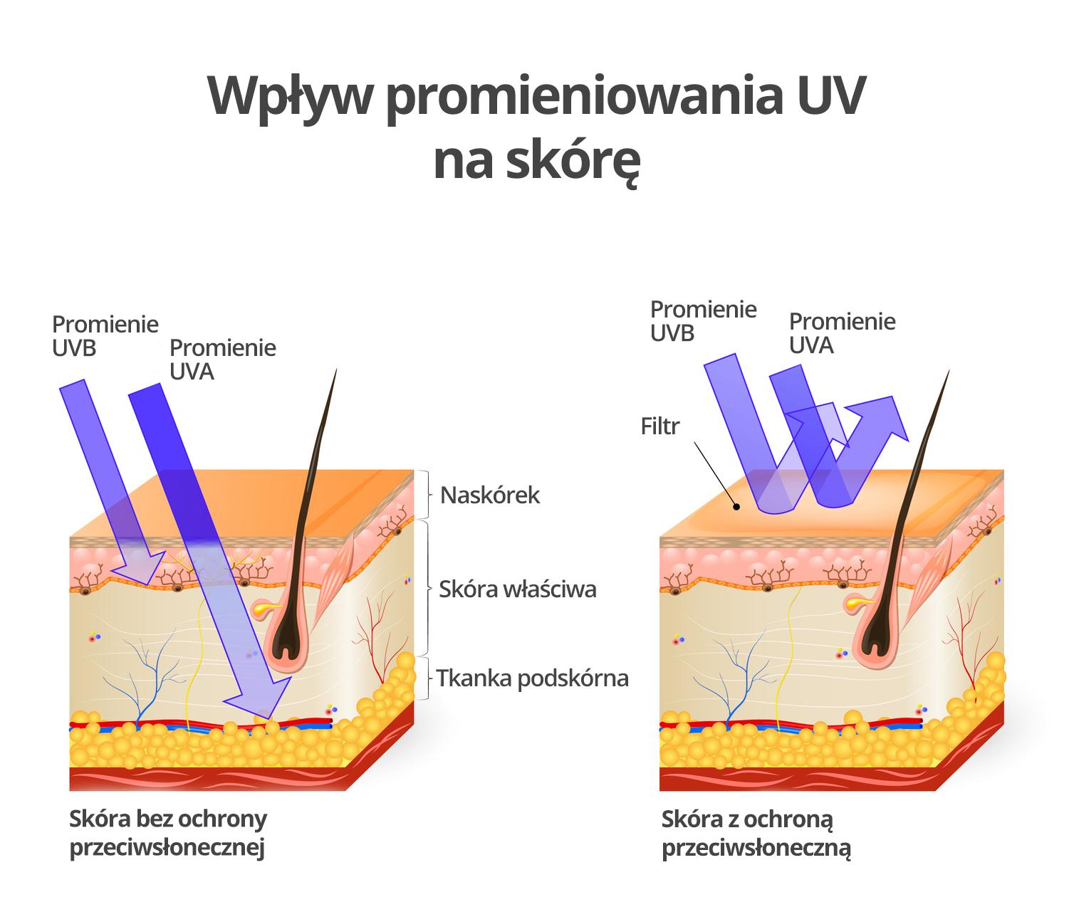 medycyna estetyczna - promieniowanie UV