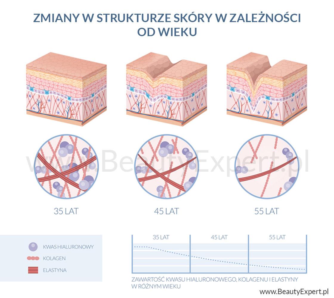 zmiany w strukturze skóry